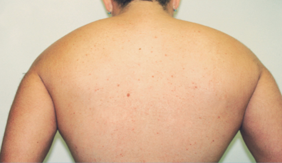 Laser Hair Removal - After Treatment