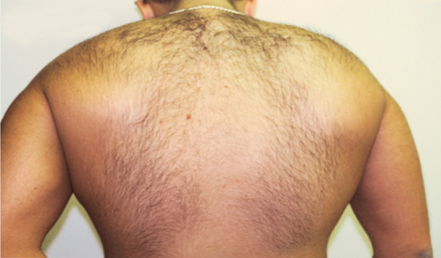 Laser Hair Removal - Before Treatment