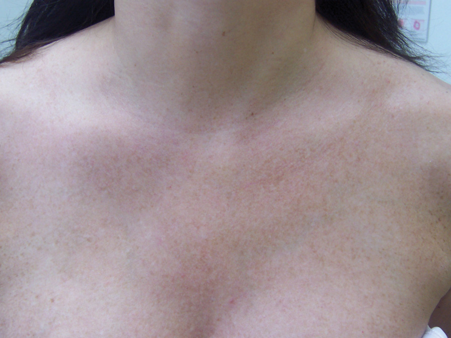Laser Pigmentation Removal - After Treatment