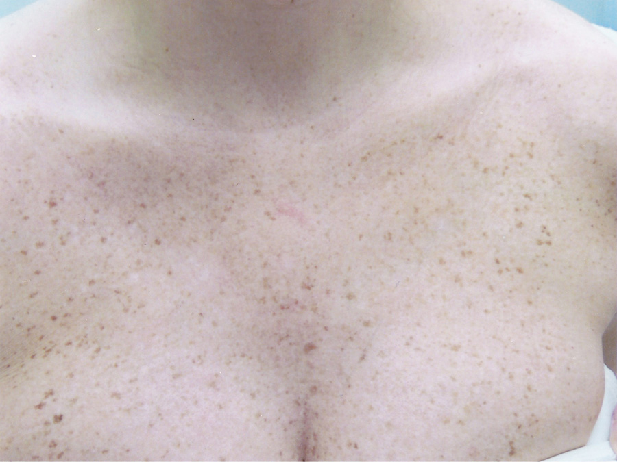 Laser Pigmentation Removal - Before Treatment