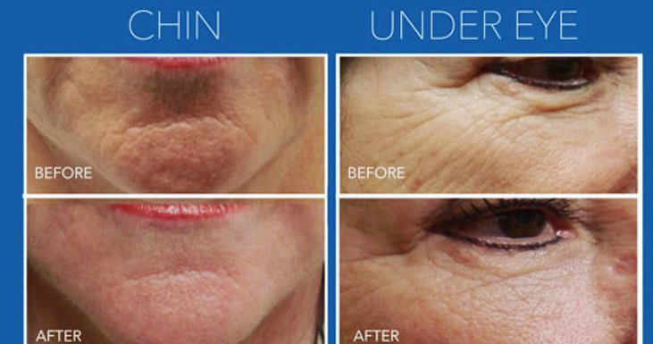 Microneedling rejuvapen face chin cheeks