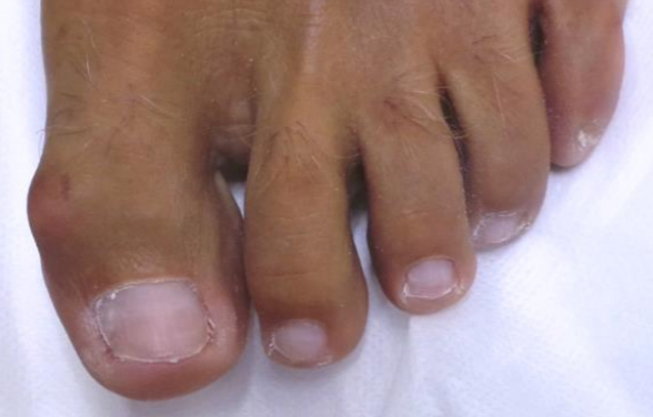 Nail Fungal Treatment - After 2 Months / 4 Treatments