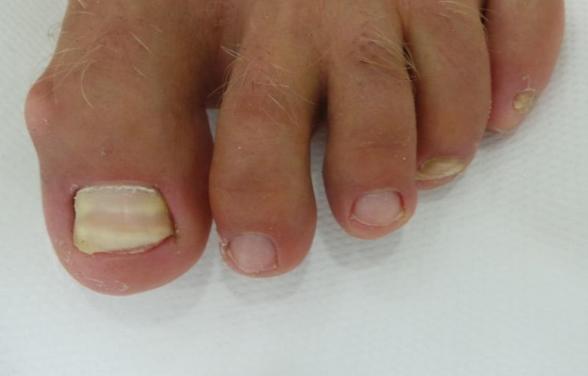 Nail Fungal Treatment - Before Treatment