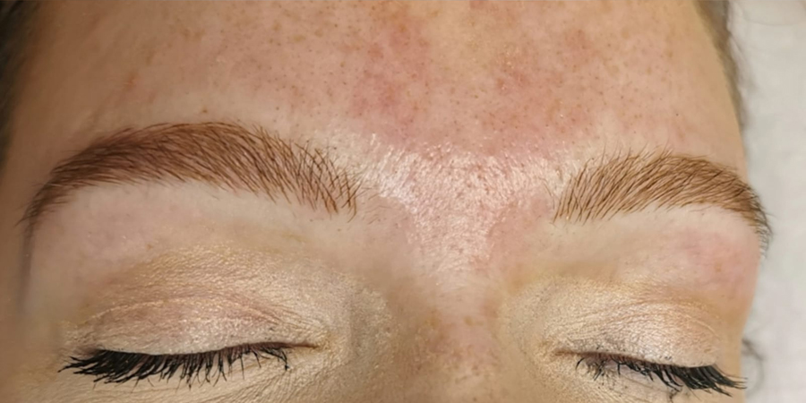 Phi Brows - After Treatment