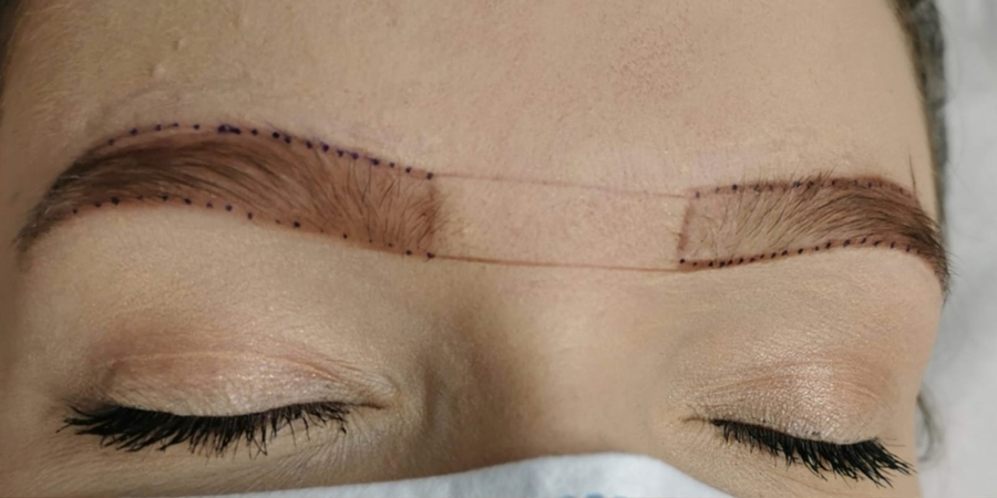 Phi Brows - Before Treatment